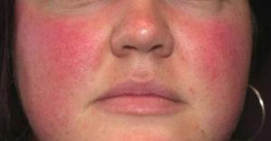 Аллергический дерматит и армия