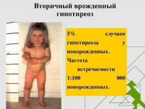 Гипотиреоз у родителей передается детям