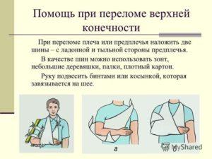 Статья ук при переломе руки
